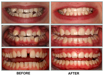 orthodontal treatment cases