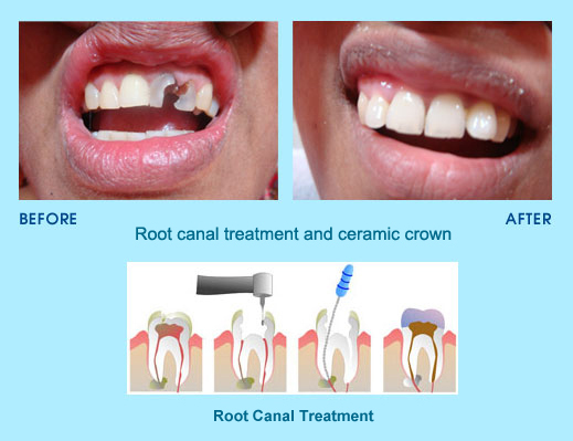 root canal treatment cases
